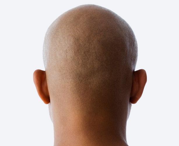 raza negra cancer de prostata