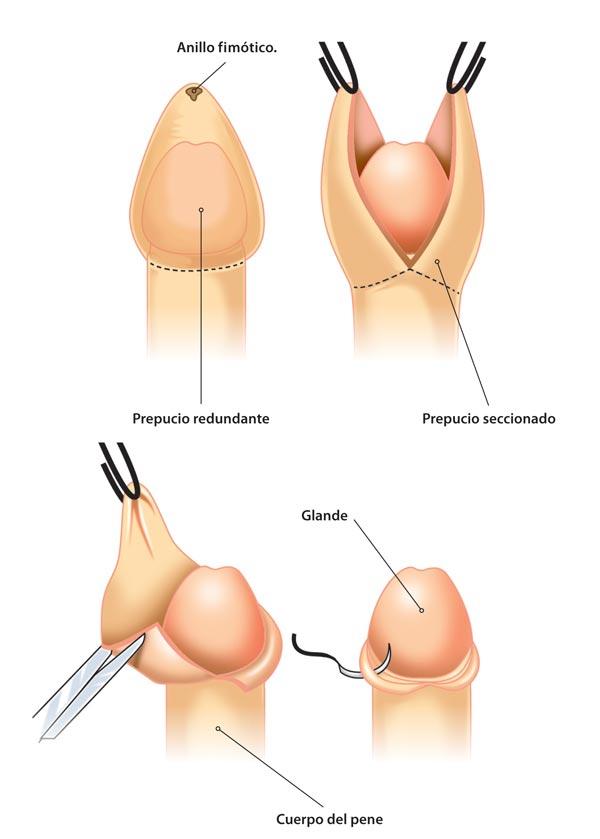 la balanitis puede conducir a la prostatitis