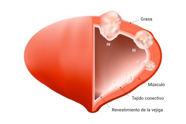eyaculacion con sangre termino medico