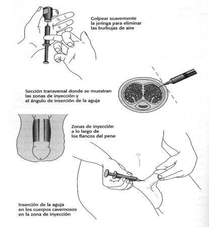 ¿Cómo se aplica la inyección en el pene para la disfunción eréctil?