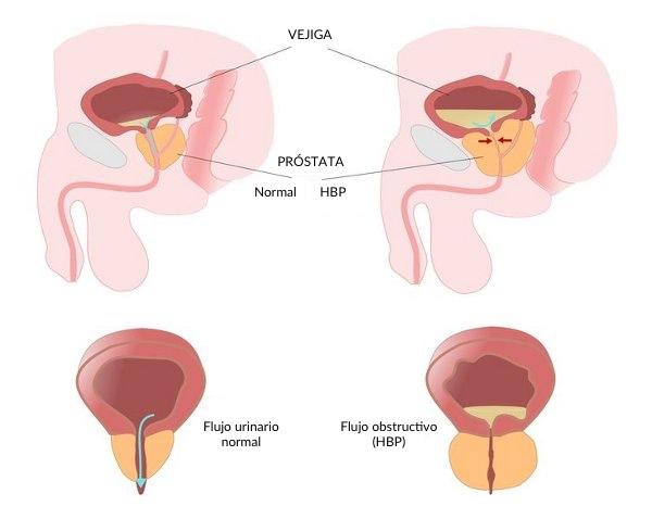 Hiperplasia benigna de próstata: medicación oral