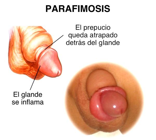 Parafimosis: cómo un descuido puede convertirse en una urgencia quirúrgica