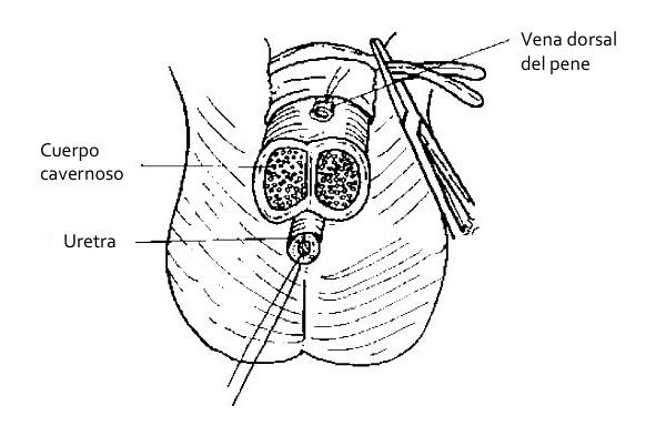 Penectomía parcial