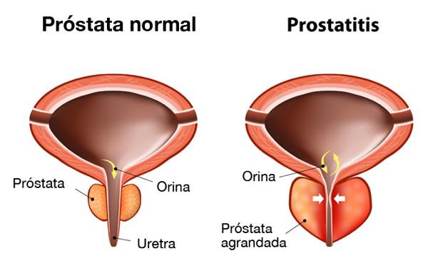 si cura la prostata