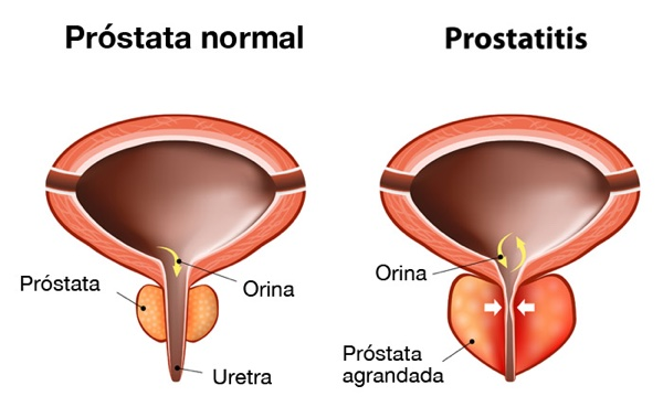 Operado prostata tener relaciones sexuales