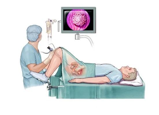 ¿Cómo se realiza una cistoscopia? ¿Es dolorosa?