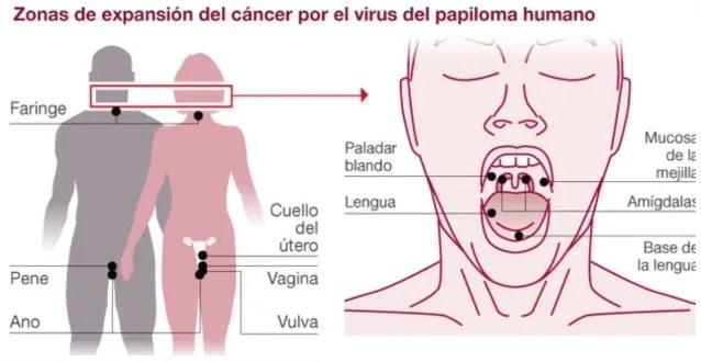 detectado el VPH