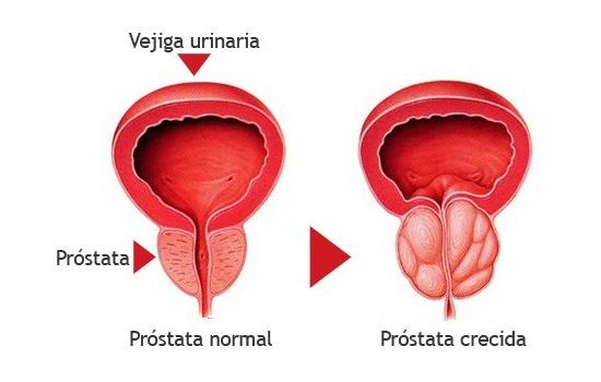 próstata pequeña