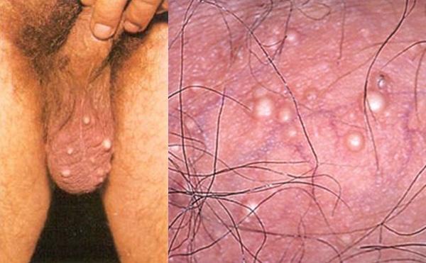 picazón en el escroto y la próstata