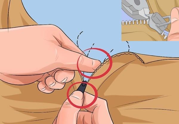 Atrapamiento de la piel del pene con una cremallera ¿cómo se debe actuar?