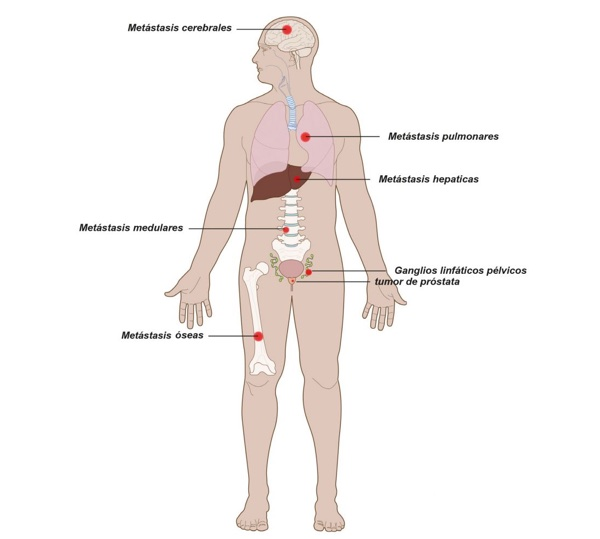 tumor óseo de próstata