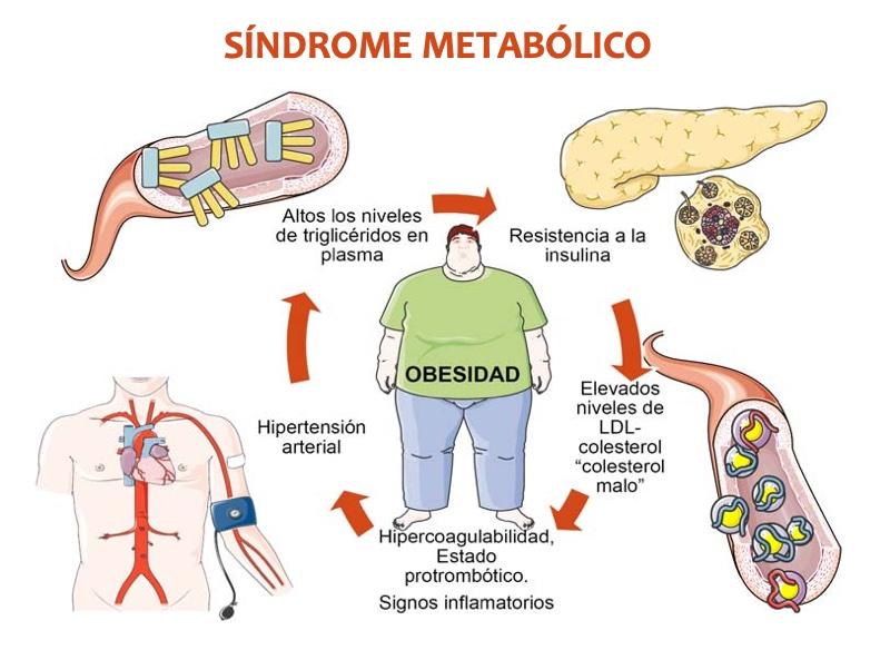 relación entre síndrome metabólico y diabetes