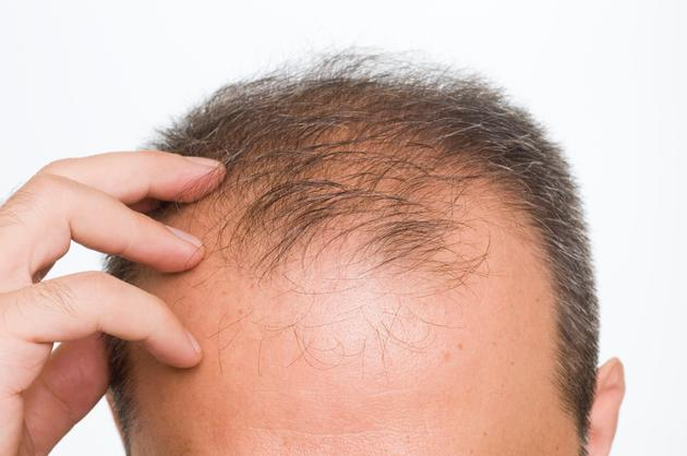 https://i1.wp.com/www.mensfitness.com/sites/mensfitness.com/files/imagecache/node_page_image/article_images/male-pattern-baldness-main_0.jpg