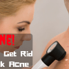 How to Get Rid of Bacne | Tips to Prevent Back Acne