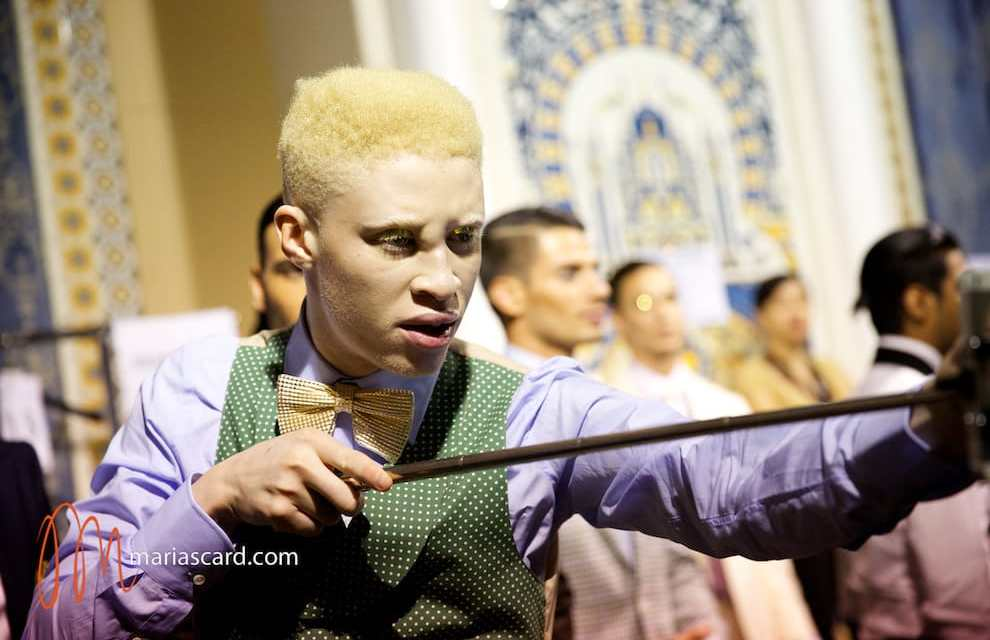Shaun Ross – First Male Albino Model