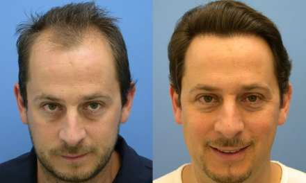 Hair Transplantation – The Trends For 2015