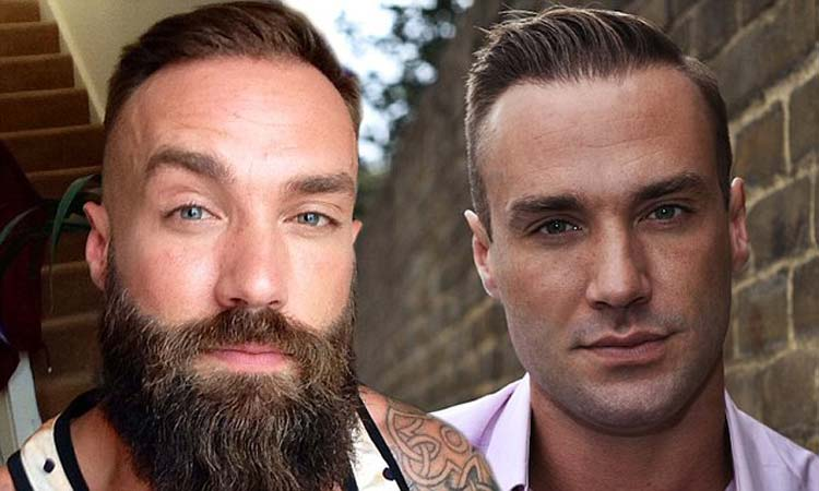 Cosmetic Surgery Trends – Beards & Blepharoplasty