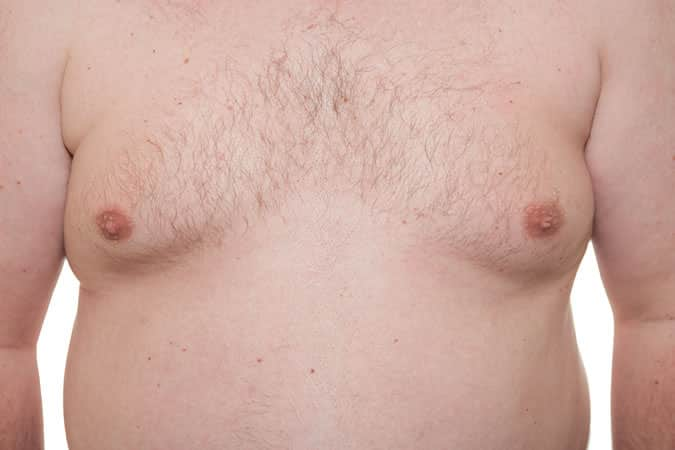 Cosmetic Surgery Trends – Botox, Sweating &  Male Breast Reduction