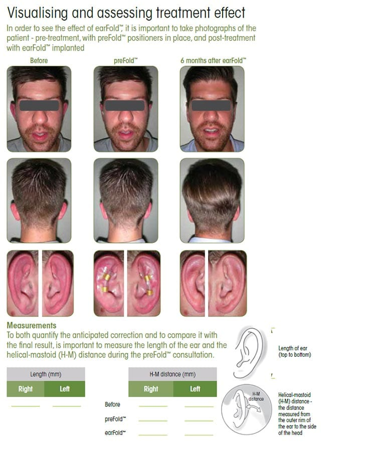 arfold London floppy ear procedure