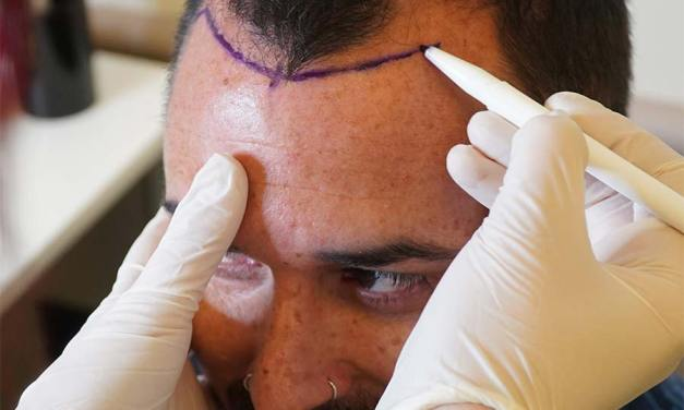 Estepera Hair Clinic Uses FUE Hair Technique for Successful Hair Transplants