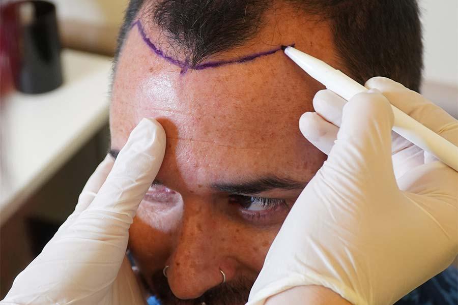 Estepera Hair Clinic Uses FUE Hair Technique for Successful Hair Transplants