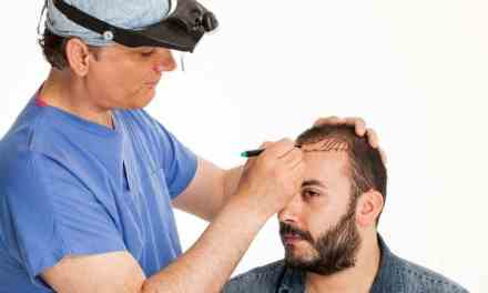 Body Hair Transplants – Are They Worth It?
