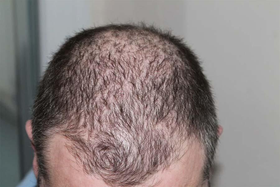 Hair Loss Remedies for Men