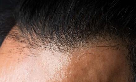 Where Can You Get Quality Hair Thickening Fibers?
