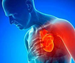 Resultado de imagen para ataques cardiacos