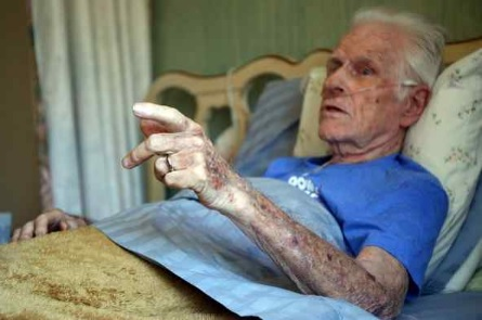 Stewart Wobber, 91, has a terminal lung condition, and is getting hospice care at his home in Los Altos Hills on June 1. Wobber said he supports California's new End of Life Option Act, and would consider taking advantage of it, if needed. (Ray Chavez -- Bay Area News Group)