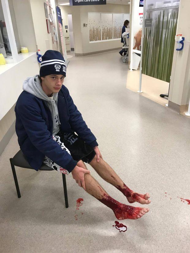 Sam Kanizay at a hospital in Melbourne. (Jarrod Kanizay via AFP Getty)