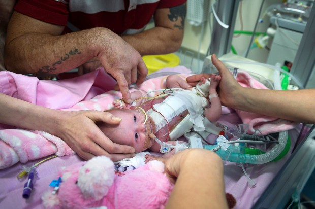 Three-week-old Vanellope Hope Wilkins who was born with an extremely rare condition in which the heart grows on the outside of the body, at Glenfield Hospital in Leicester, Monday Dec. 11, 2017. (Ben Birchall/PA via AP)