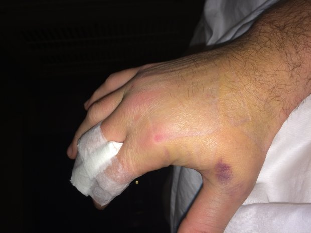 Former MLB pitcher Greg Reynolds' swollen hand after he punched a ravingnaked man on LSD who attacked him and tried to break into his home. Reynolds said the injury prevented him from pitching effectively, and a jury awarded him $2.3 million from the attacker and his host. (Courtesy Greg Reynolds) Permission to use all publications.