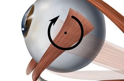 Eye Movement Dysfunction