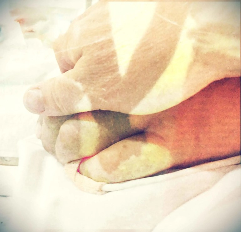 Dana and I, holding hands when we were kids, overlayed on an image of my hand on Dana's when he was in his coma.