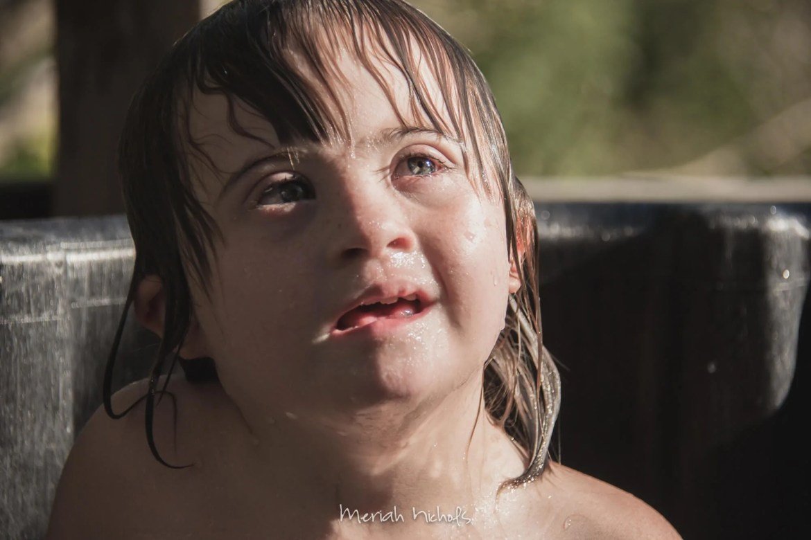 my daughter with Down syndrome