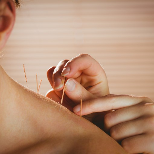 Meridians and Marathons offers acupuncture