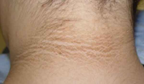 Insulin-resistance-causes-acanthosis-nigricans