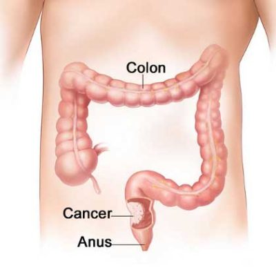 Colorectal-Cancer-1-400x391