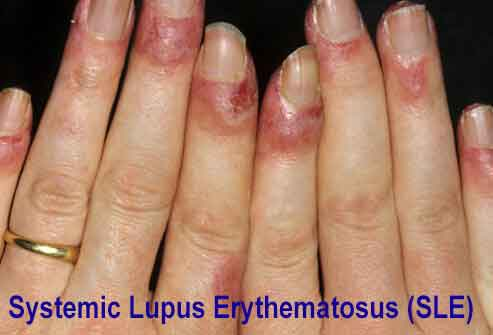 Systemic-Lupus-Erythematosus-SLE