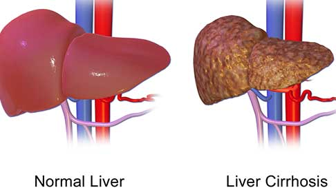coffee-health-benefits-reduces-risk-of-liver-cirrhosis