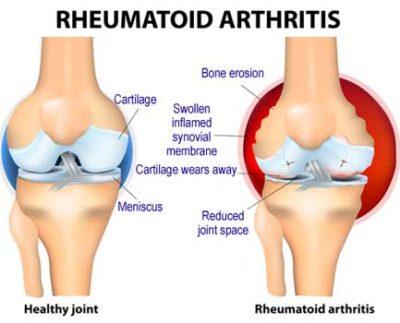 rheumatoid-arthritis-400x323
