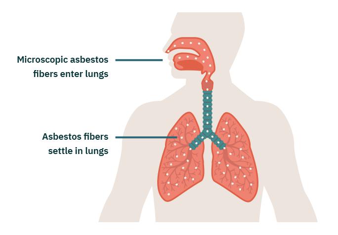 How Asbestos Causes Mesothelioma