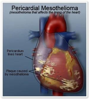 Malignant Peritoneal Mesothelioma