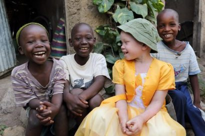Child with albinism with friends