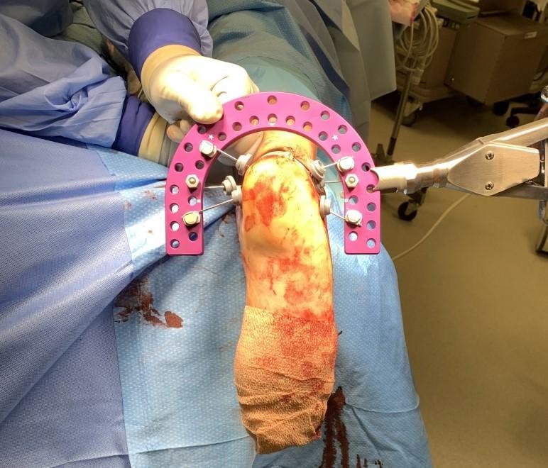 Dr. Lee Hlad using Metalogix Revolution External Fixation System