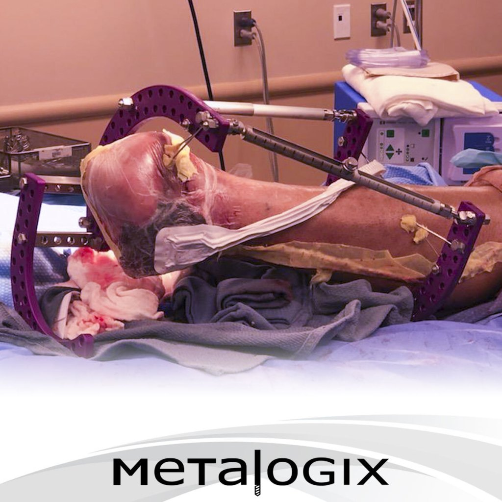Limb Salvage using Metalogix Revolution External Plating System