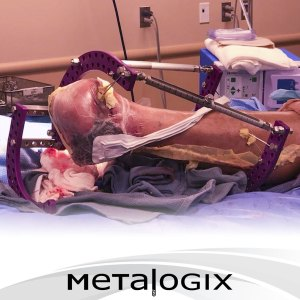 Limb Salvage using Metalogix Revolution External Plating System