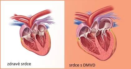 zdravé a nemocné s srdce s mitrální nedomykavostí