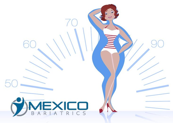 Mexico Bariatric Surgery Benefits